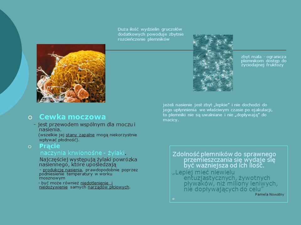 Cewka moczowa Prącie naczynia krwionośne - żylaki.