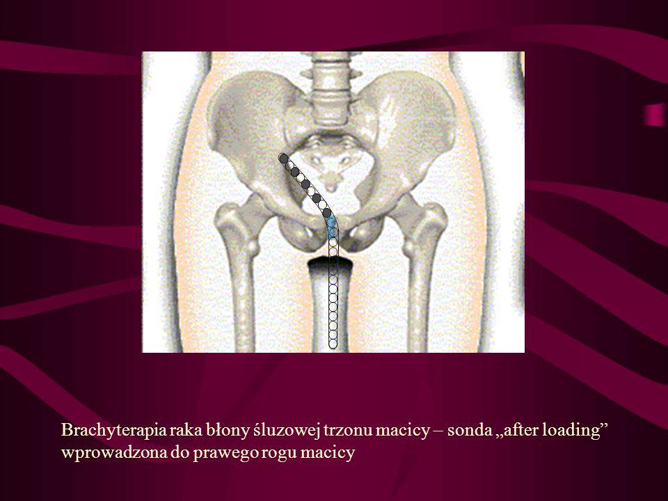 """Brachyterapia raka błony śluzowej trzonu macicy – sonda """"after loading"""
