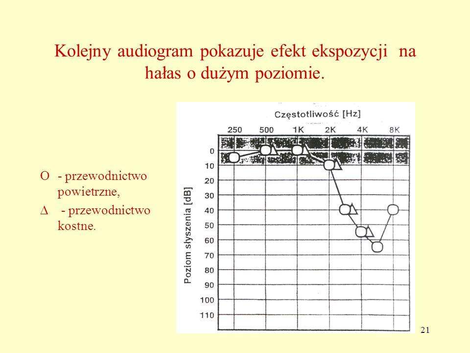 Kolejny audiogram pokazuje efekt ekspozycji na hałas o dużym poziomie.