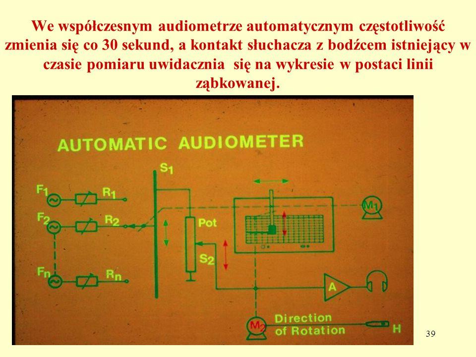 We współczesnym audiometrze automatycznym częstotliwość zmienia się co 30 sekund, a kontakt słuchacza z bodźcem istniejący w czasie pomiaru uwidacznia się na wykresie w postaci linii ząbkowanej.