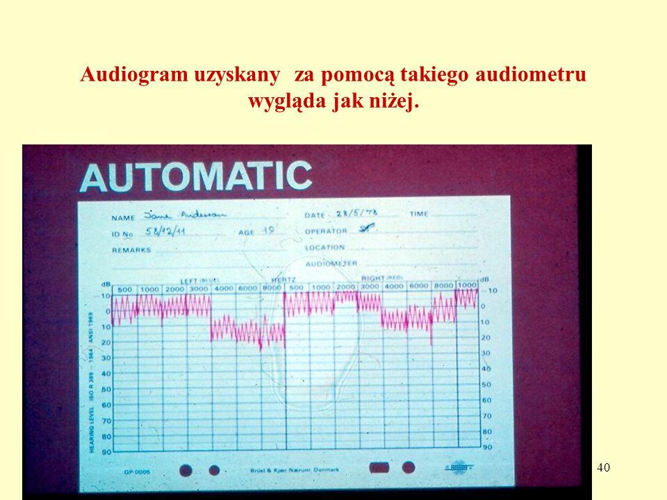 Audiogram uzyskany za pomocą takiego audiometru wygląda jak niżej.