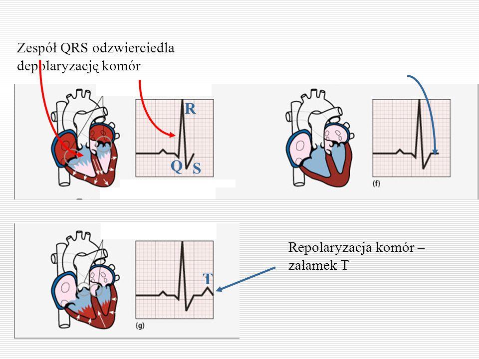 R Q S T Zespół QRS odzwierciedla depolaryzację komór