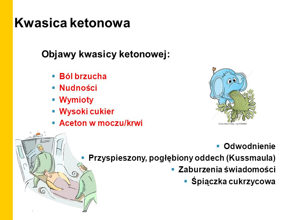 Kwasica ketonowa Objawy kwasicy ketonowej: Ból brzucha Nudności