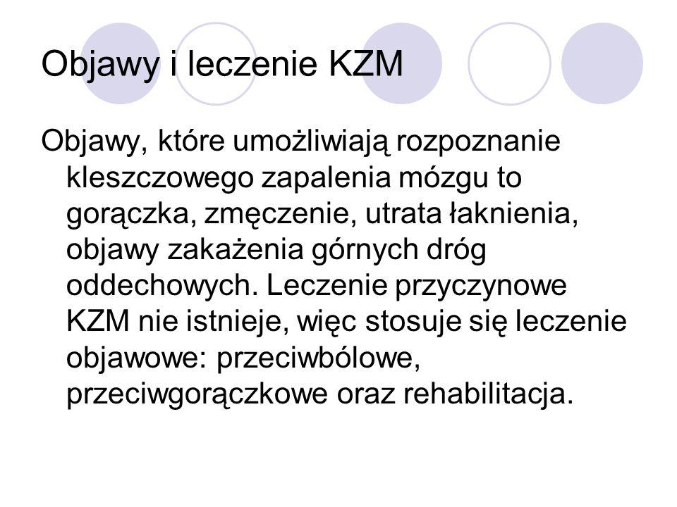Objawy i leczenie KZM