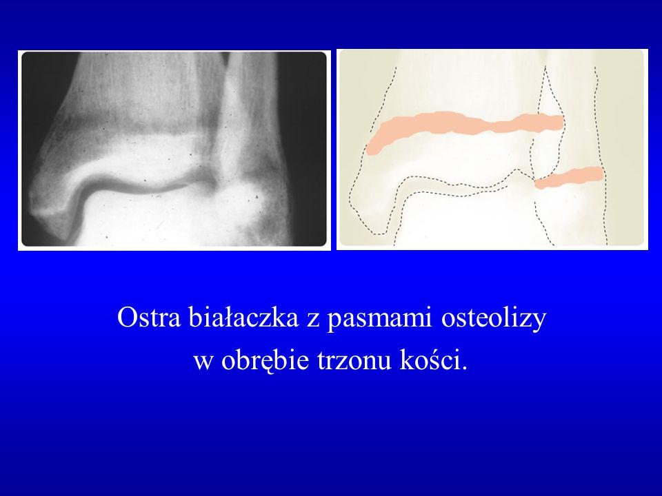 Ostra białaczka z pasmami osteolizy