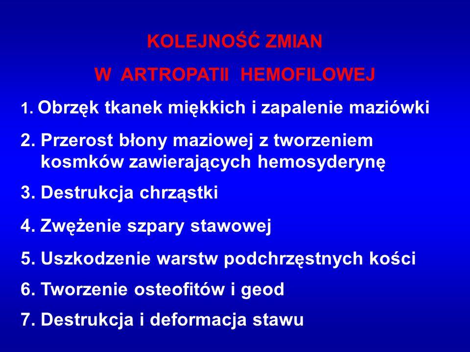 W ARTROPATII HEMOFILOWEJ