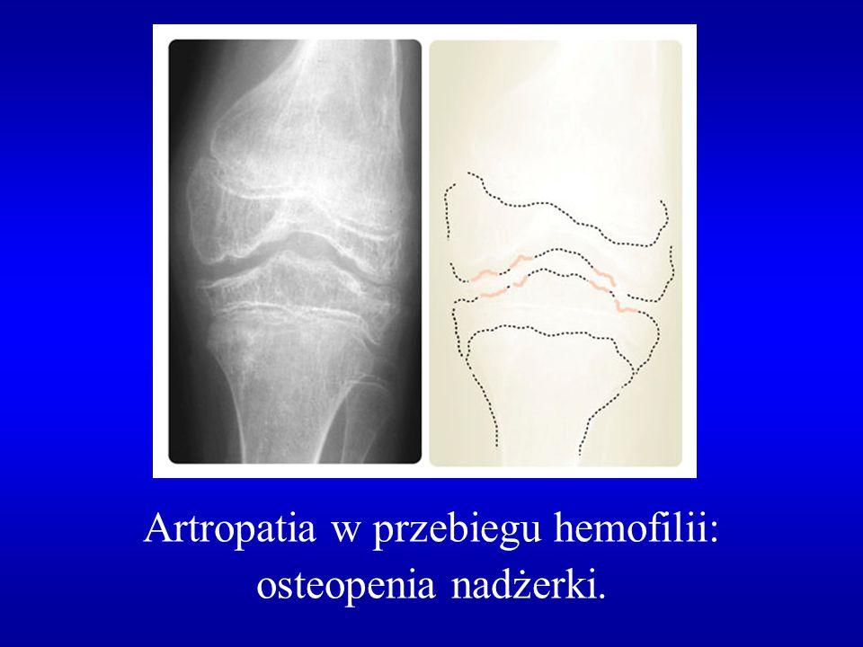 Artropatia w przebiegu hemofilii:
