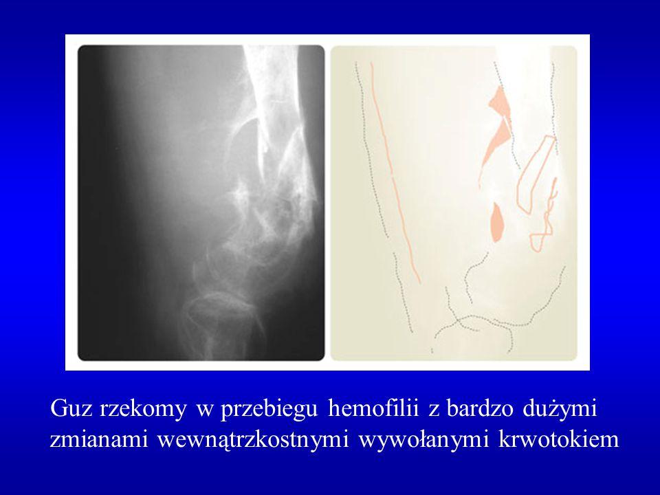 Guz rzekomy w przebiegu hemofilii z bardzo dużymi zmianami wewnątrzkostnymi wywołanymi krwotokiem