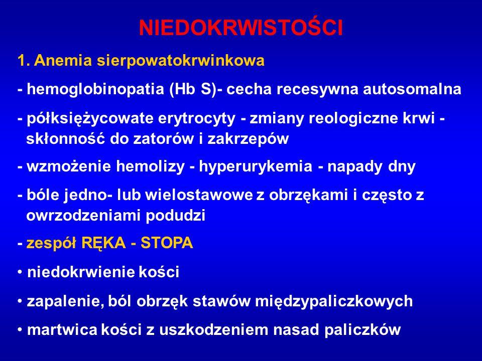 NIEDOKRWISTOŚCI 1. Anemia sierpowatokrwinkowa