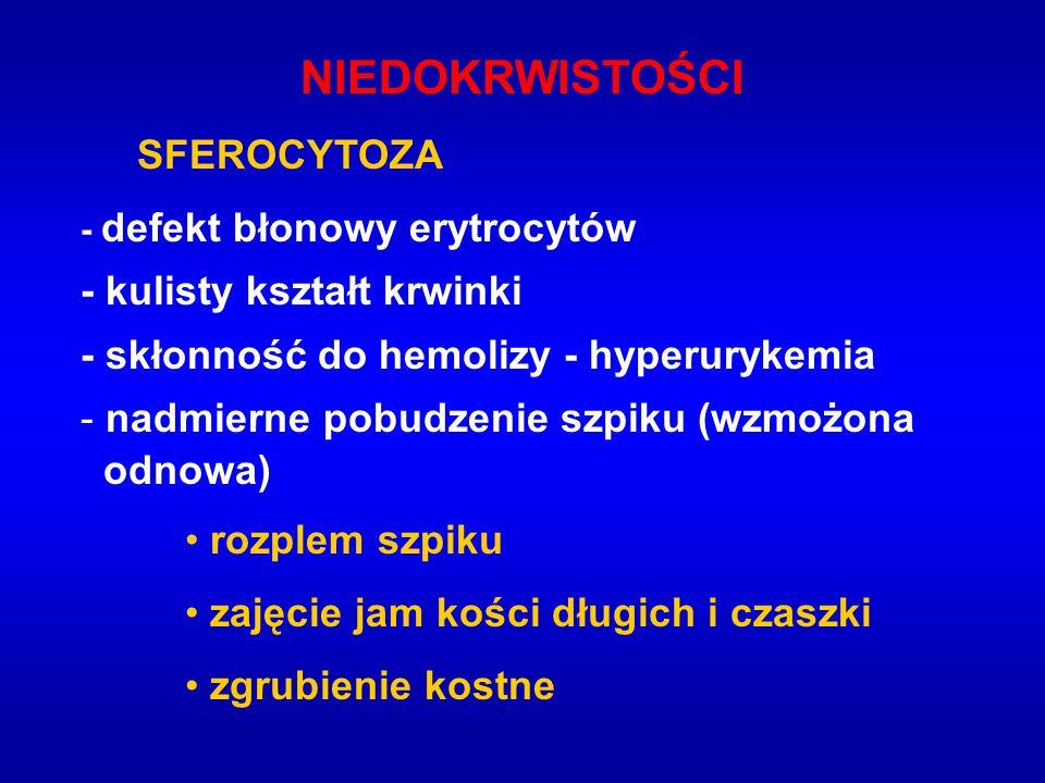 NIEDOKRWISTOŚCI SFEROCYTOZA - kulisty kształt krwinki