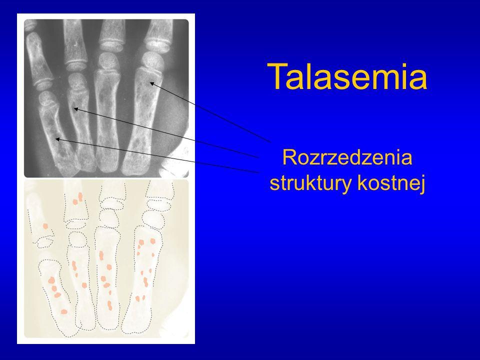 Rozrzedzenia struktury kostnej