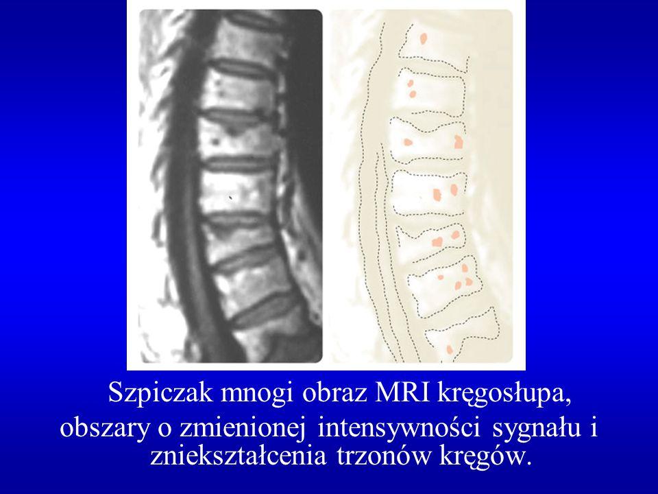 Szpiczak mnogi obraz MRI kręgosłupa,