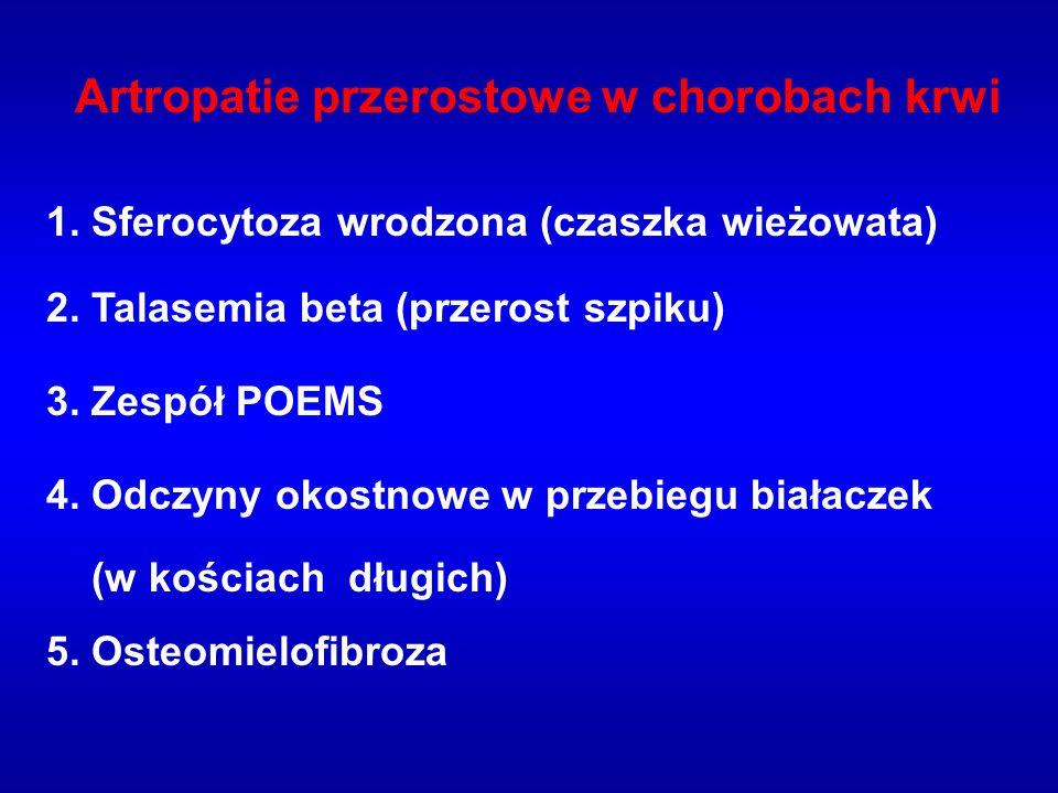 Artropatie przerostowe w chorobach krwi