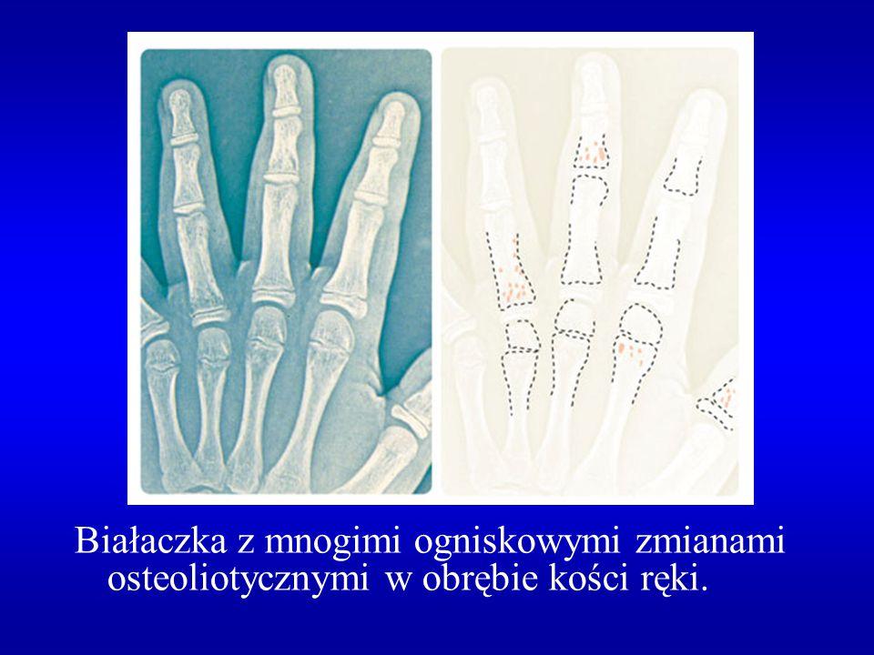 Białaczka z mnogimi ogniskowymi zmianami osteoliotycznymi w obrębie kości ręki.