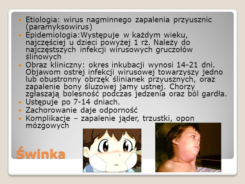 Etiologia: wirus nagminnego zapalenia przyusznic (paramyksowirus)