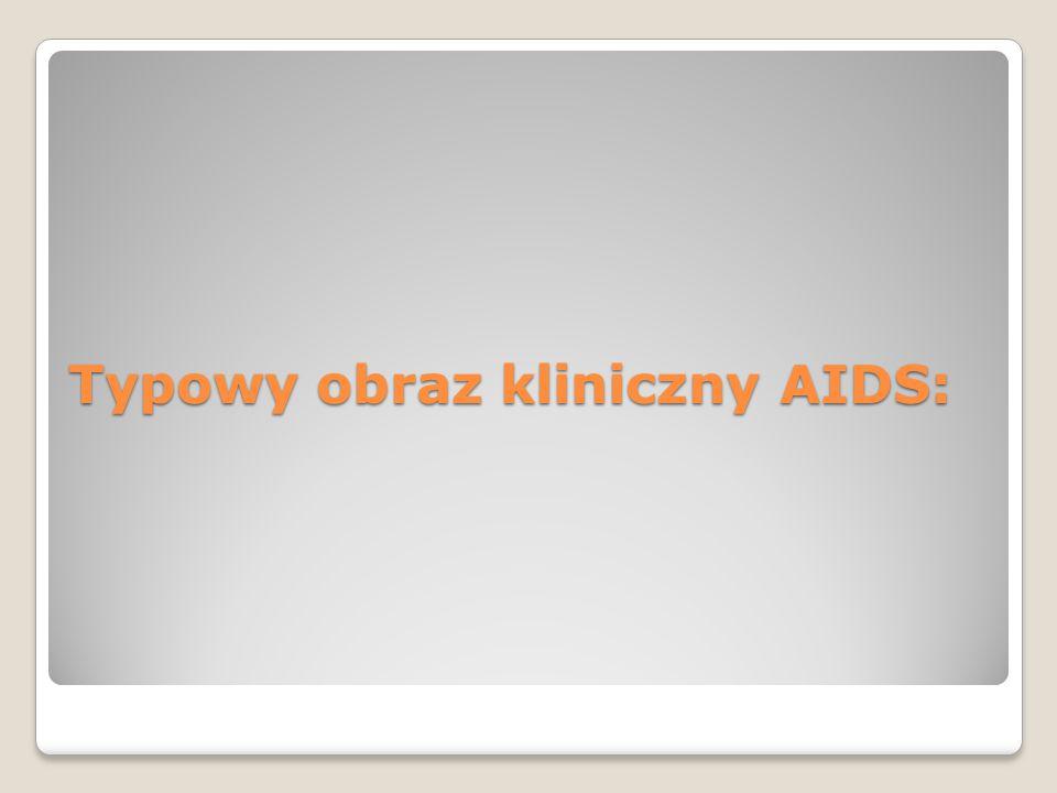 Typowy obraz kliniczny AIDS: