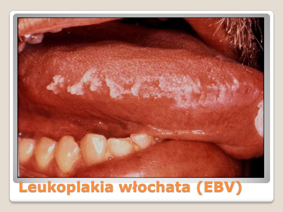 Leukoplakia włochata (EBV)