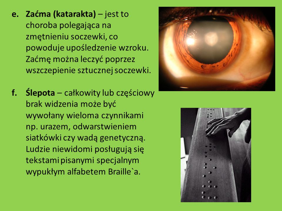 Zaćma (katarakta) – jest to choroba polegająca na zmętnieniu soczewki, co powoduje upośledzenie wzroku. Zaćmę można leczyć poprzez wszczepienie sztucznej soczewki.