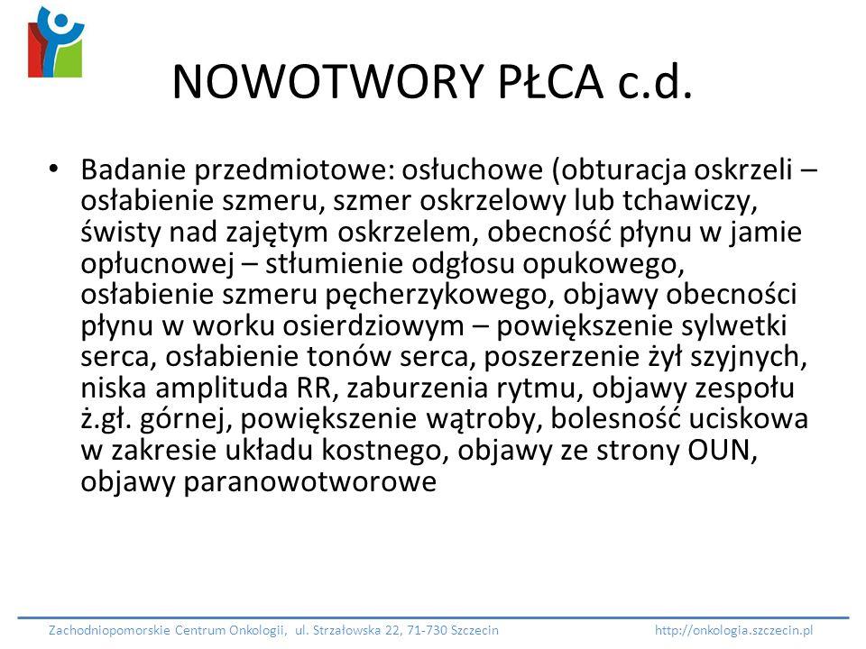 NOWOTWORY PŁCA c.d.