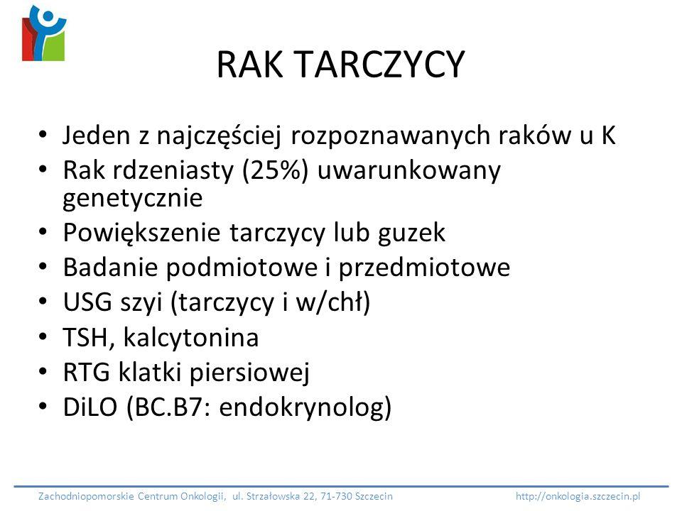 RAK TARCZYCY Jeden z najczęściej rozpoznawanych raków u K