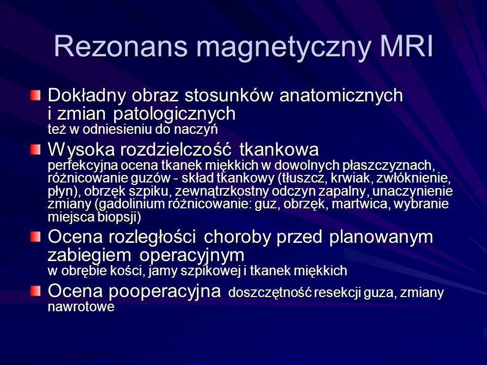 Rezonans magnetyczny MRI