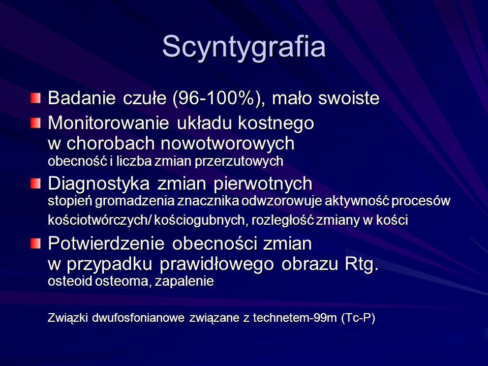 Scyntygrafia Badanie czułe (96-100%), mało swoiste