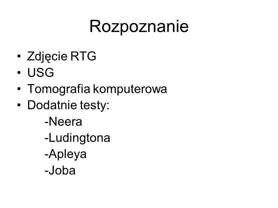 Rozpoznanie Zdjęcie RTG USG Tomografia komputerowa Dodatnie testy: