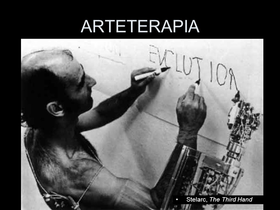 ARTETERAPIA Stelarc, The Third Hand