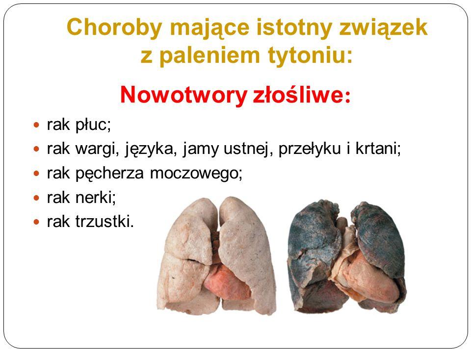Choroby mające istotny związek z paleniem tytoniu: