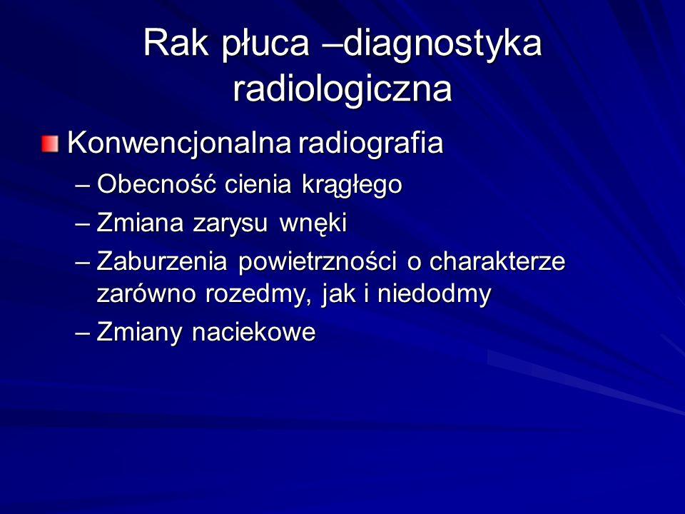 Rak płuca –diagnostyka radiologiczna
