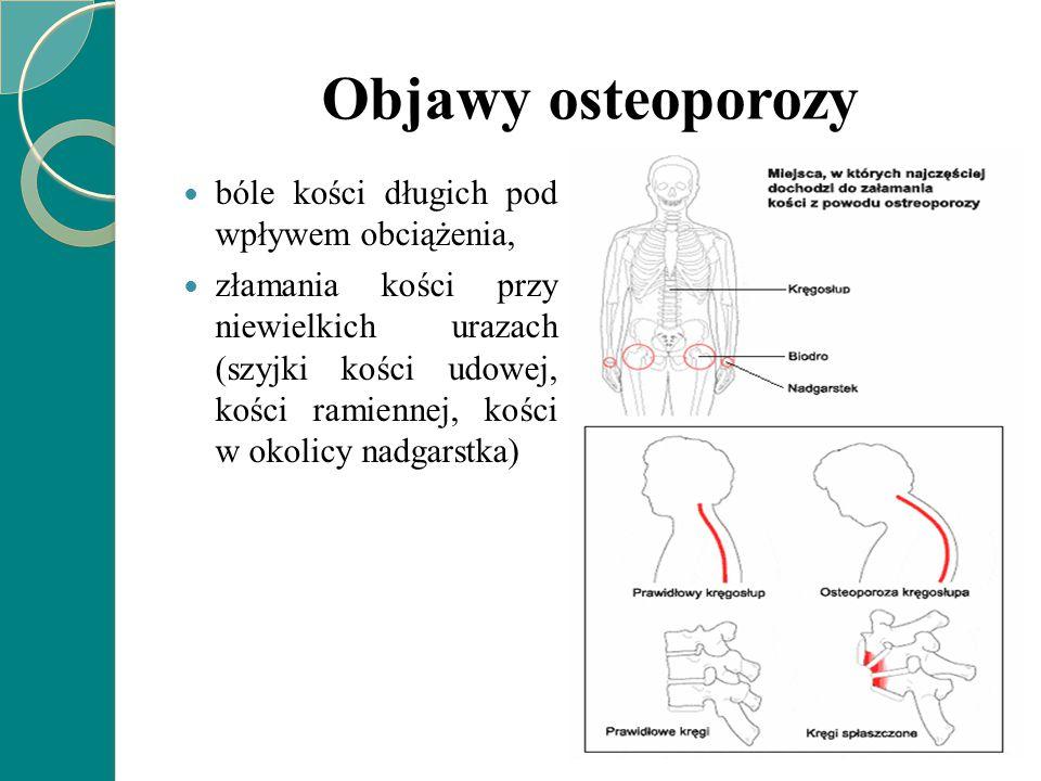 Objawy osteoporozy bóle kości długich pod wpływem obciążenia,