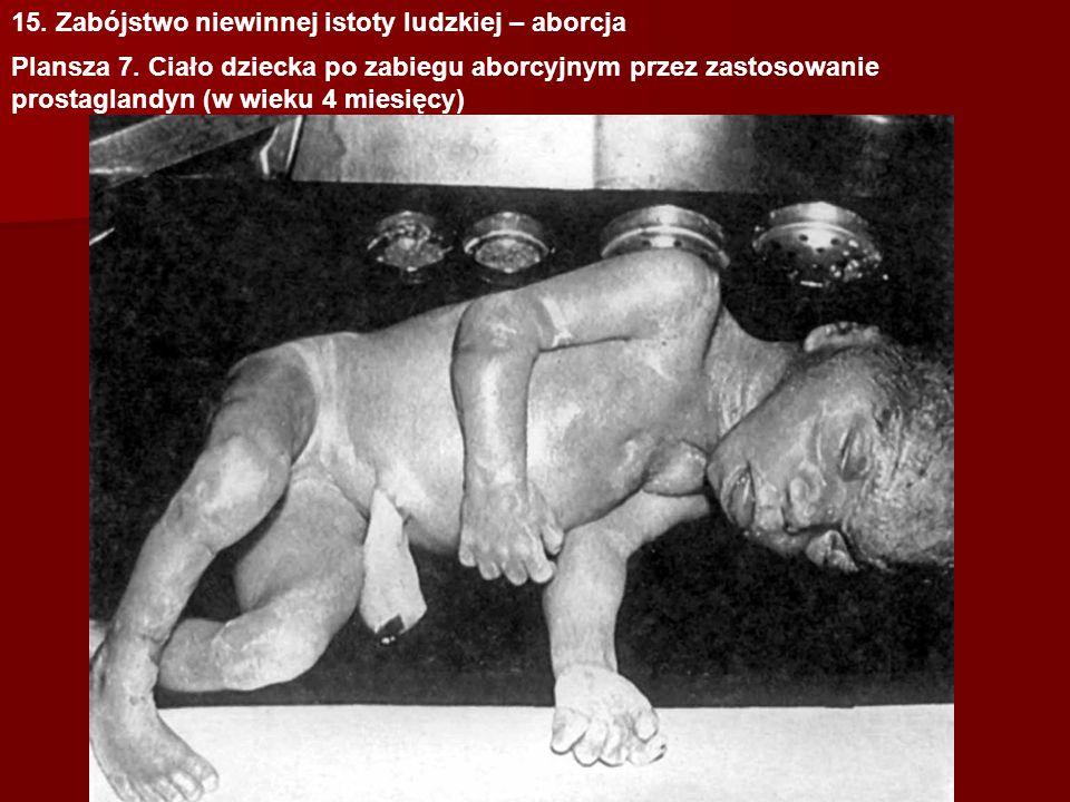 15. Zabójstwo niewinnej istoty ludzkiej – aborcja