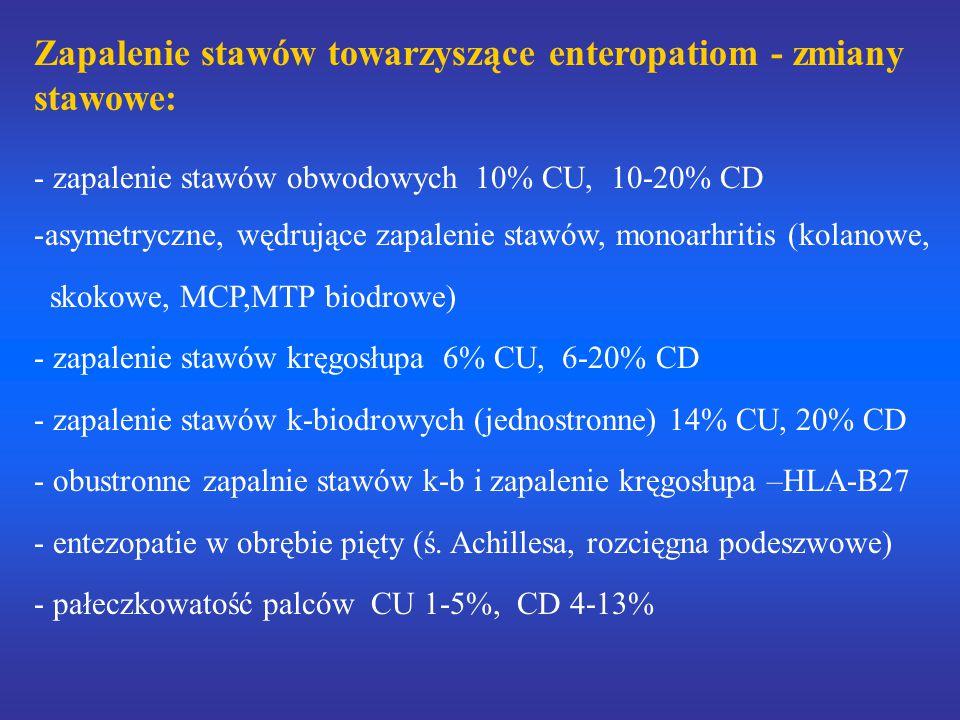 Zapalenie stawów towarzyszące enteropatiom - zmiany stawowe: