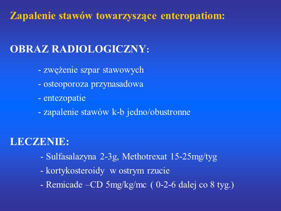 Zapalenie stawów towarzyszące enteropatiom: OBRAZ RADIOLOGICZNY: