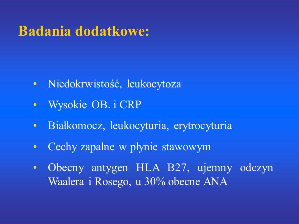 Badania dodatkowe: Niedokrwistość, leukocytoza Wysokie OB. i CRP