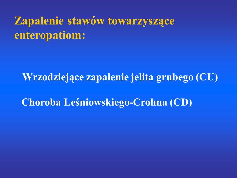 Zapalenie stawów towarzyszące enteropatiom: