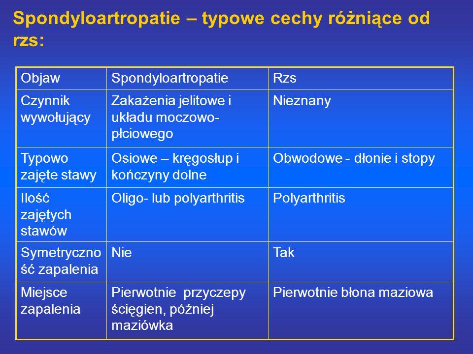 Spondyloartropatie – typowe cechy różniące od rzs: