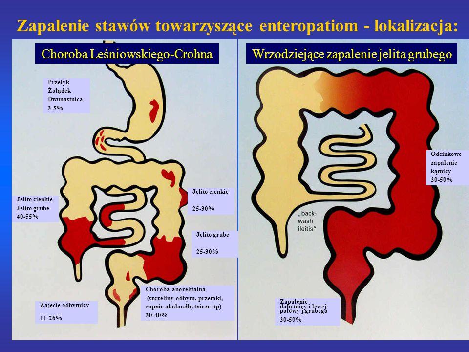 Zapalenie stawów towarzyszące enteropatiom - lokalizacja: