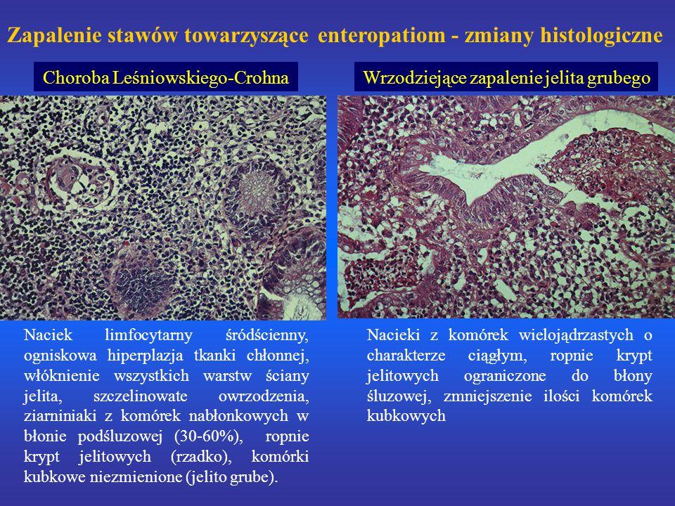 Zapalenie stawów towarzyszące enteropatiom - zmiany histologiczne