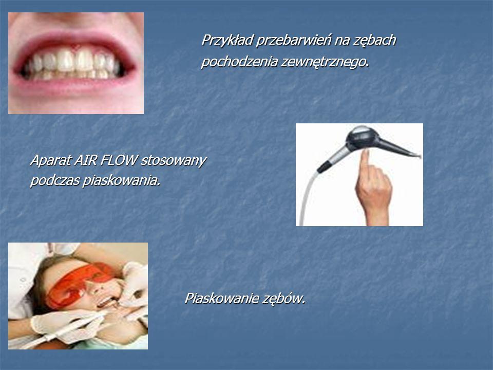 Przykład przebarwień na zębach