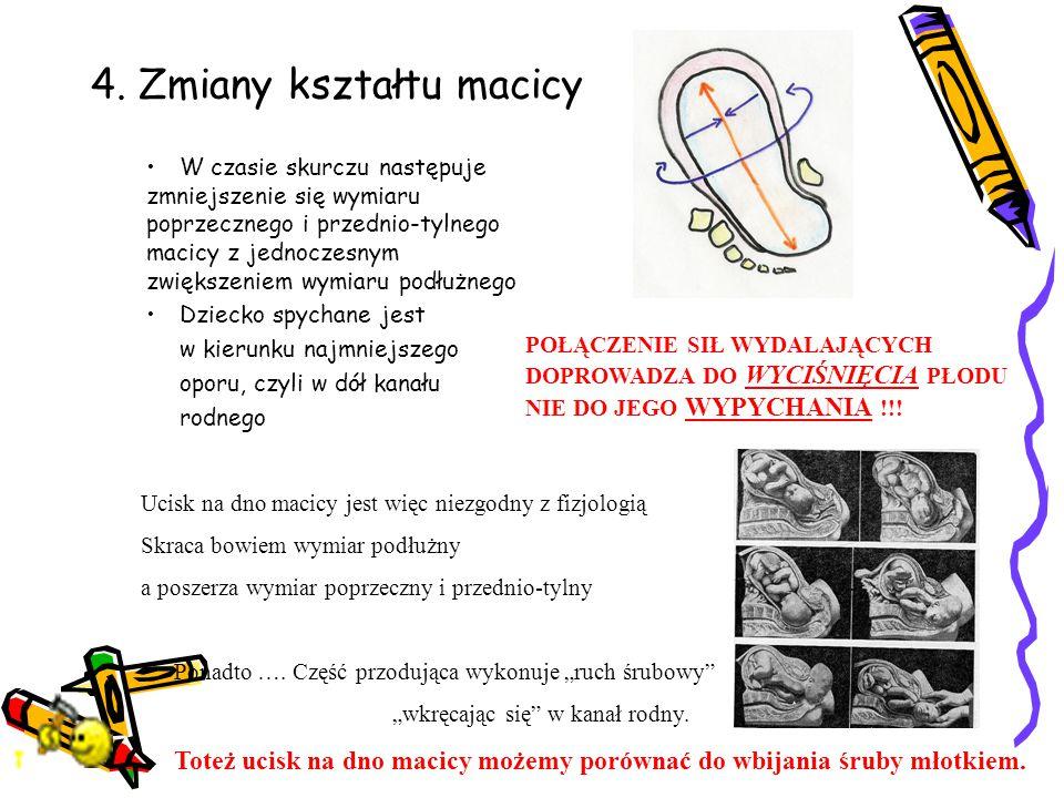 4. Zmiany kształtu macicy