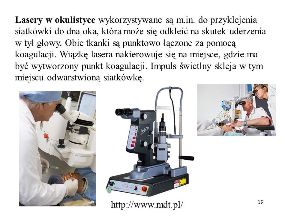 Lasery w okulistyce wykorzystywane są m. in