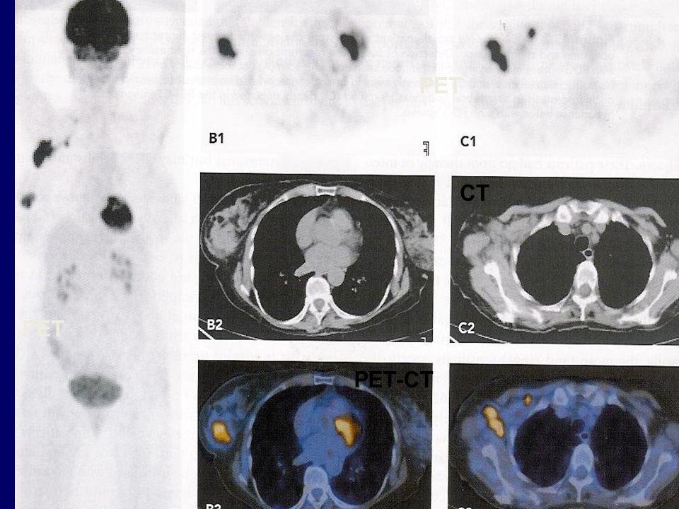 PET CT PET PET-CT