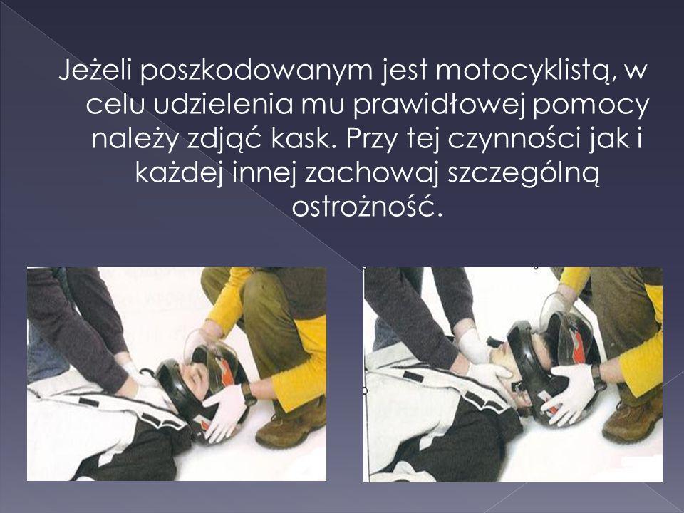 Jeżeli poszkodowanym jest motocyklistą, w celu udzielenia mu prawidłowej pomocy należy zdjąć kask.