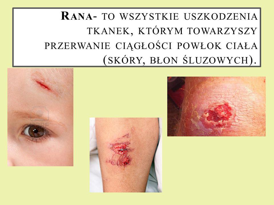 Rana- to wszystkie uszkodzenia tkanek, którym towarzyszy przerwanie ciągłości powłok ciała (skóry, błon śluzowych).