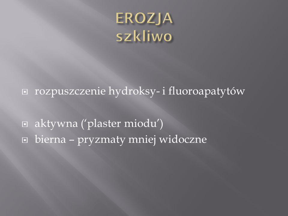 EROZJA szkliwo rozpuszczenie hydroksy- i fluoroapatytów