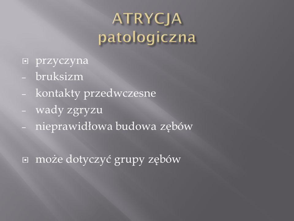 ATRYCJA patologiczna przyczyna bruksizm kontakty przedwczesne
