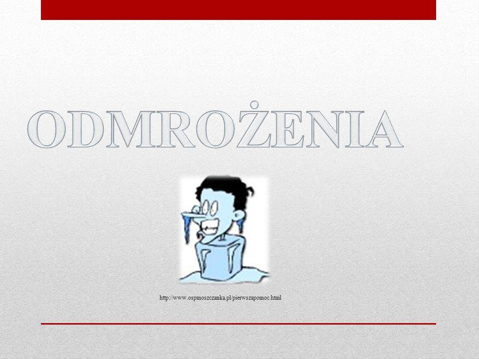 ODMROŻENIA http://www.ospmoszczanka.pl/pierwszapomoc.html