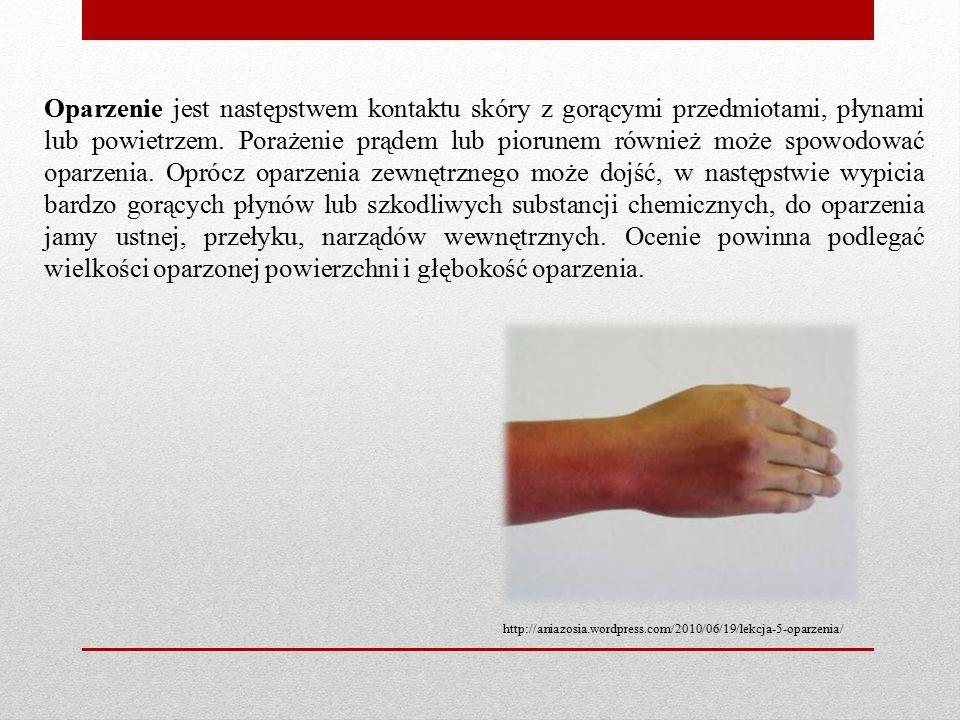 Oparzenie jest następstwem kontaktu skóry z gorącymi przedmiotami, płynami lub powietrzem. Porażenie prądem lub piorunem również może spowodować oparzenia. Oprócz oparzenia zewnętrznego może dojść, w następstwie wypicia bardzo gorących płynów lub szkodliwych substancji chemicznych, do oparzenia jamy ustnej, przełyku, narządów wewnętrznych. Ocenie powinna podlegać wielkości oparzonej powierzchni i głębokość oparzenia.