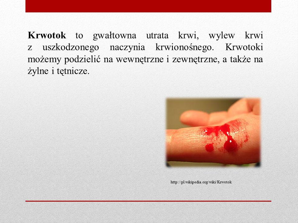 Krwotok to gwałtowna utrata krwi, wylew krwi z uszkodzonego naczynia krwionośnego. Krwotoki możemy podzielić na wewnętrzne i zewnętrzne, a także na żylne i tętnicze.